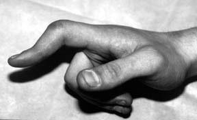 Index finger deformity