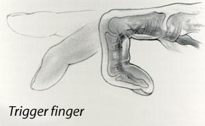 Diagram: Trigger Finger