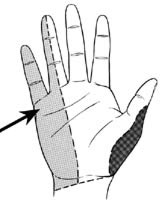 Illustration: area of the little and ring finger that demonstrates problem area