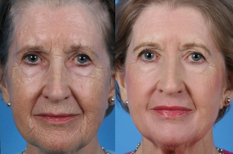 Before and After Photo: Skin Resurfacing