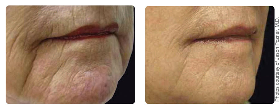 Before and after results for skin resurfacing on the chin