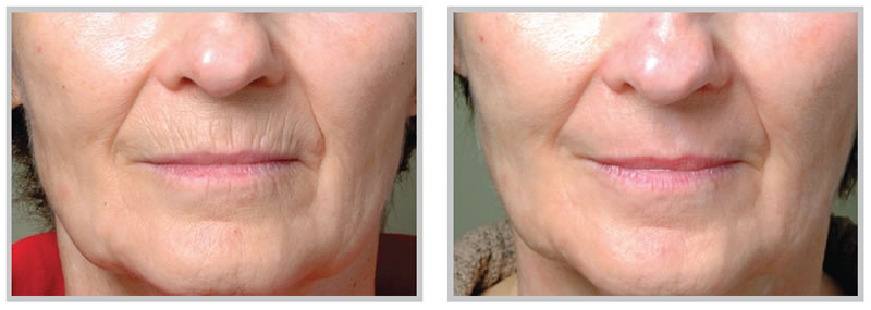 Before and after results for skin resurfacing around the lips