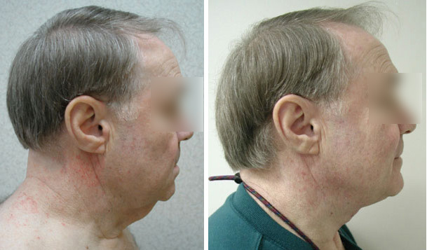 Before and After Neck Lift Procedure