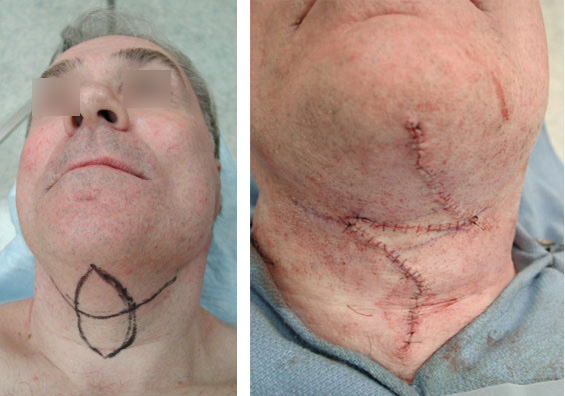 Before and After Neck Lift showing the stitches