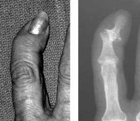 Little finger x-ray of bone