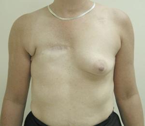 Latissimus Flap Figure 1