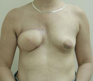 Latissimus Flap Figure 4