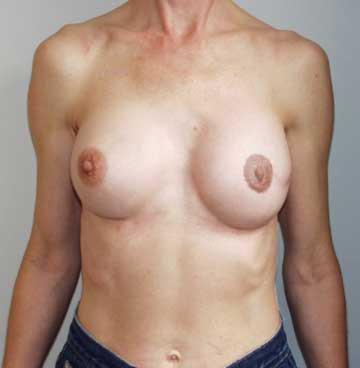 After Nipple Reconstruction and Nipple Tattooing