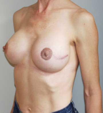 After Nipple Reconstruction and Nipple Tattooing Side View