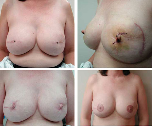 Nipple Reconstruction Before and After