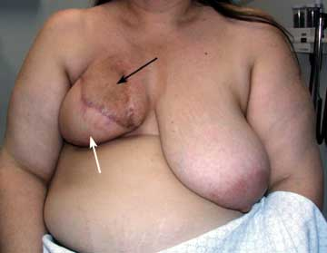 Breast Reduction Figure 1